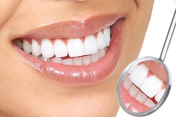 tooth-coloured-fillings